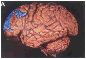 Frontal_Lobes_2
