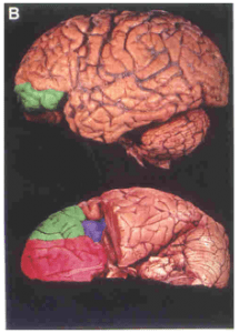 Frontal_Lobes_3